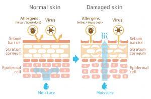 Normale vs. beschädigte Haut